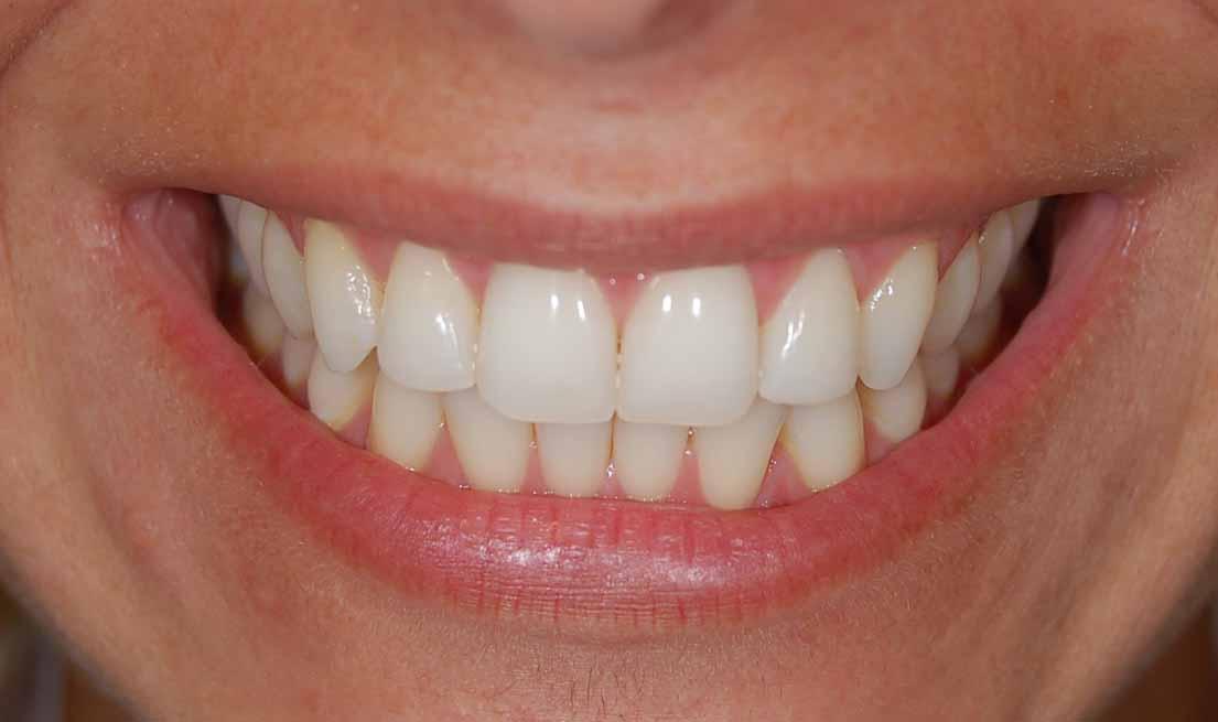 Bleaching Di Dokter Gigi Dan Manfaatnya Orange Dental