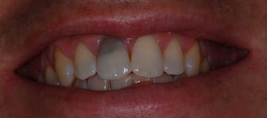 Dental Bleaching Dental Argentina