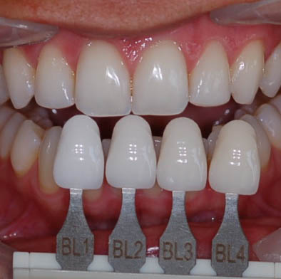 Porcelain Veneers - Dental Argentina